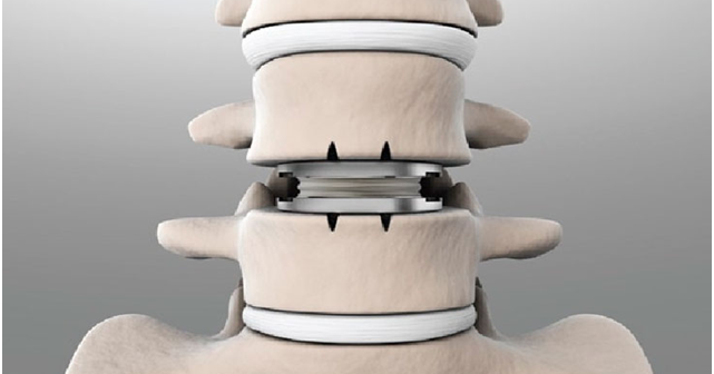 CONSUMER RESOURCES: MEDICAL – Beat degenerative disc disease with non-invasive surgery